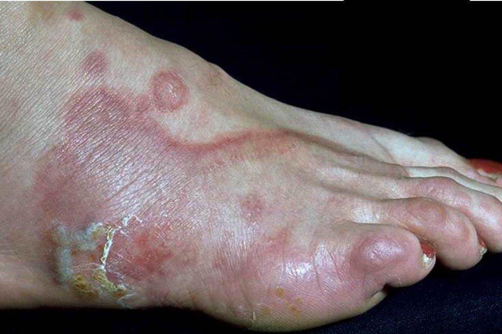 mantar hastalıkları tedavisi, ayak mantarı tedavisi, tırnak mantarı tedavisi, mantardan korunma yöntemleri, mantar tedavisi